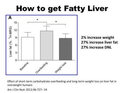 FattyLiver1-400×300