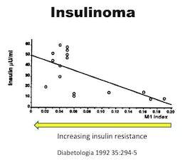 Insulinoma