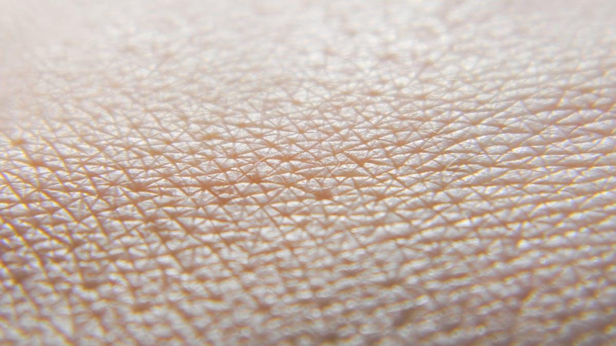"""""""Jag har varit fri från min hudsjukdom i över ett halvår nu"""""""