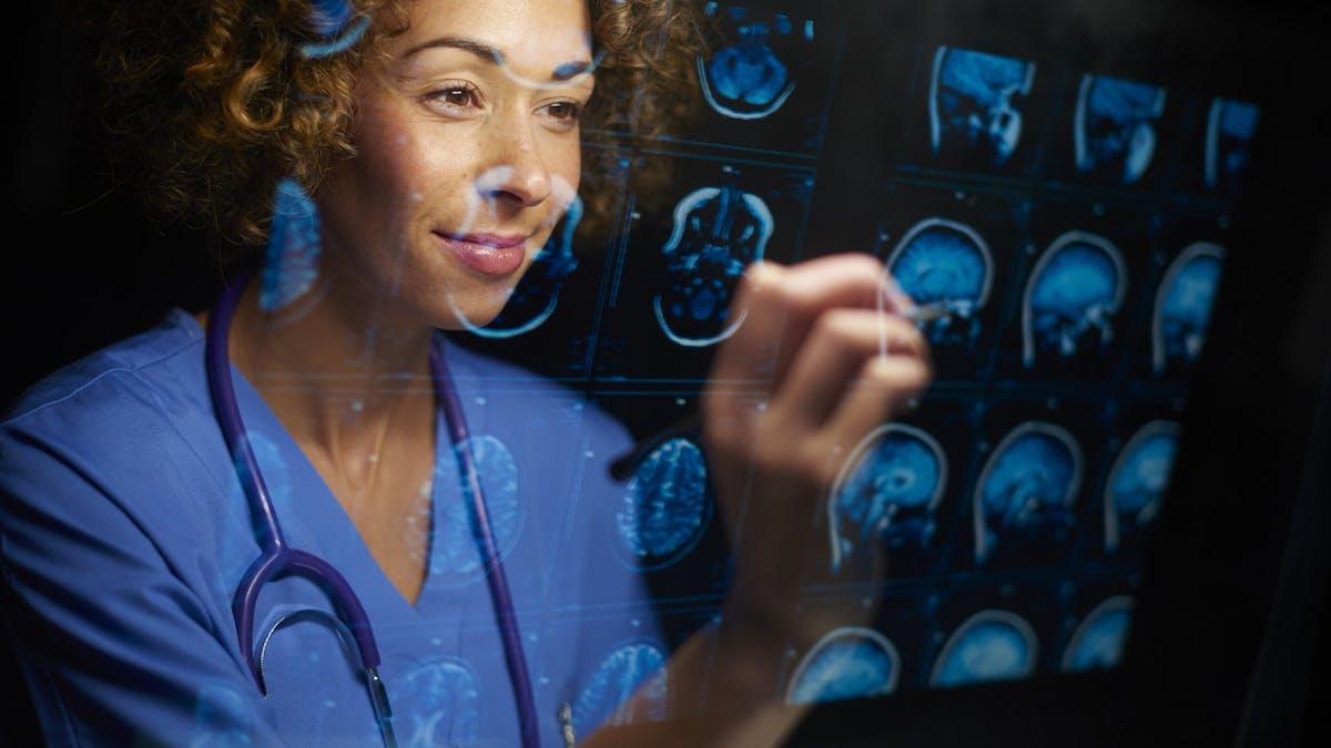 Kan hjärncancer behandlas med ketogen kost?
