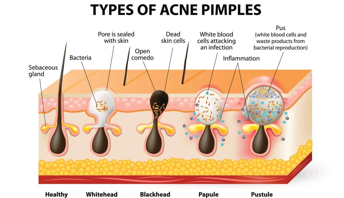acne-1200×692
