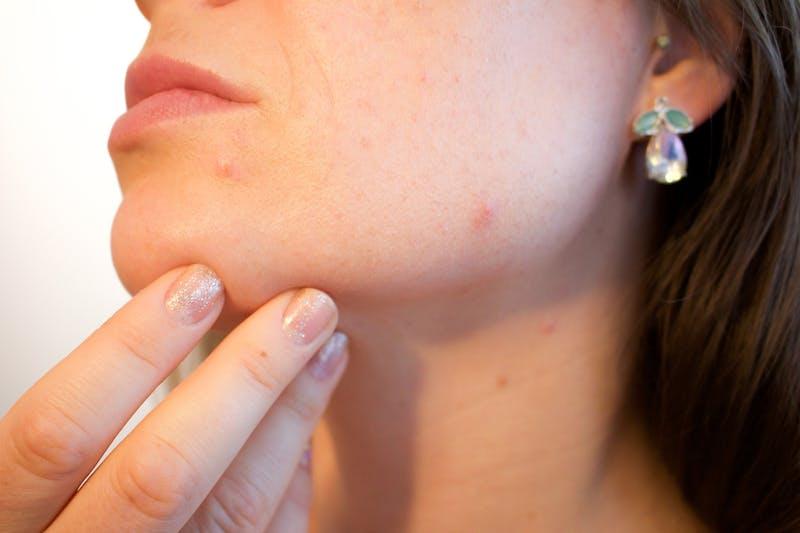 acne-1606765_1920