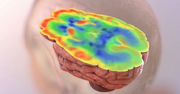 hjärnan