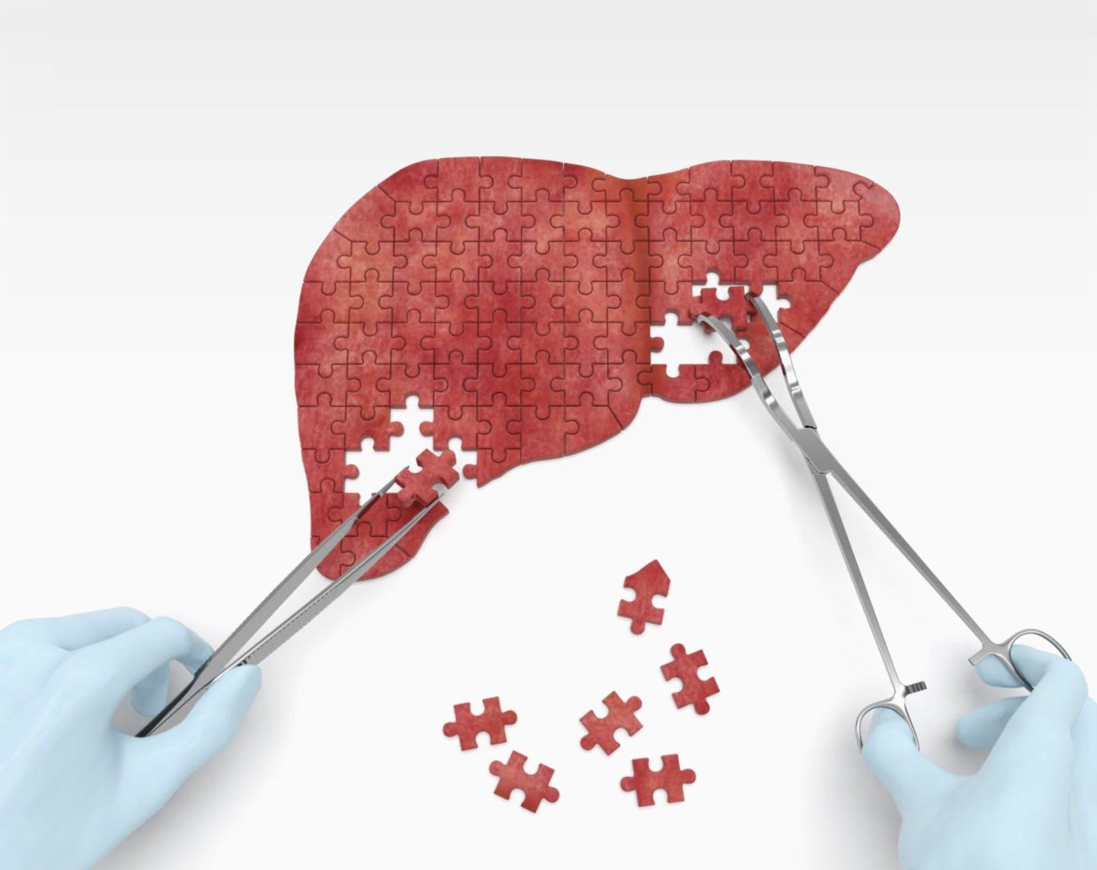 liver-disease-1-1600×1270
