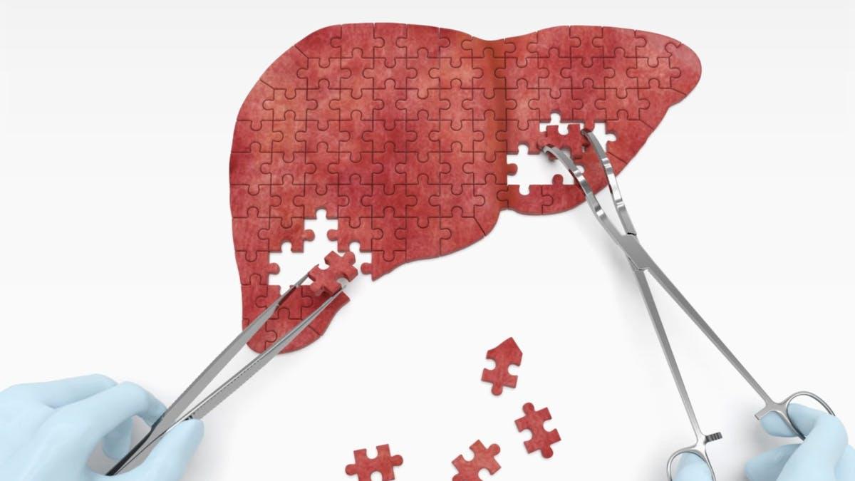 Fettlever är den snabbast växande anledningen till transplantation hos unga amerikaner
