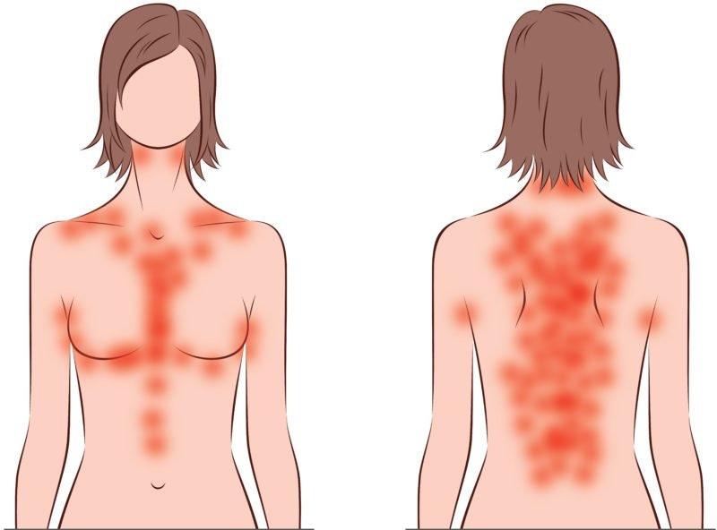 röda utslag på bröstet och ryggen