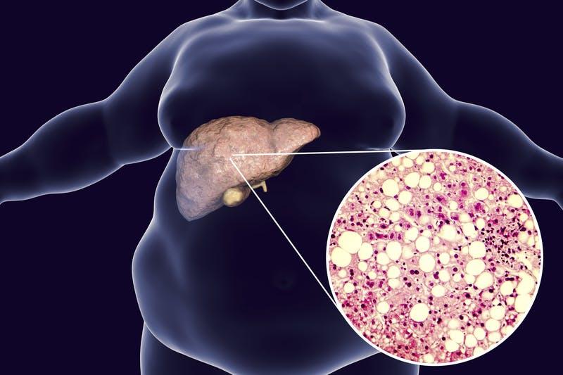 Banbrytande studie: lågkolhydratkost är en effektiv behandling vid fettlever