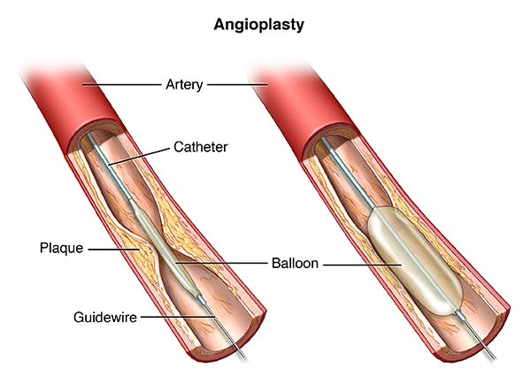 An inserted balloon catheter inflates to open blocked blood vessel