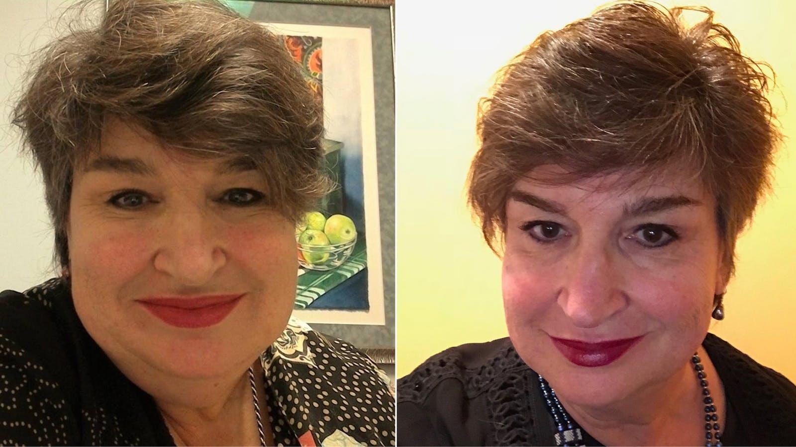 Ett år med LCHF: Minus 28 kilo och mindre migrän