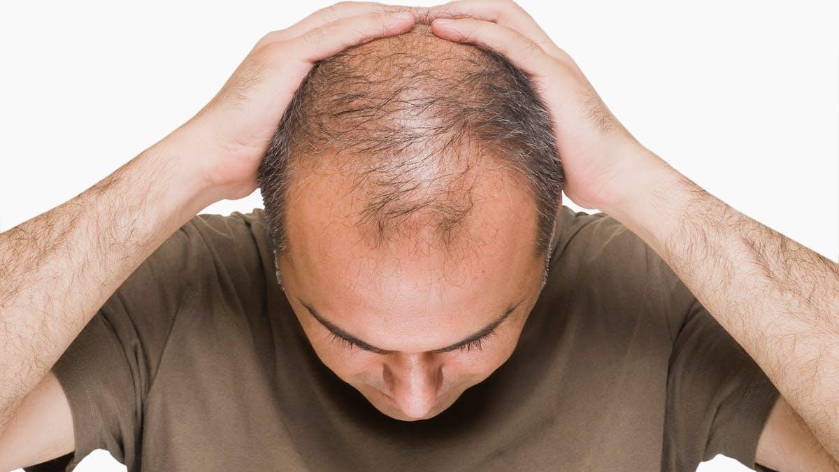 Orsakas manligt håravfall av förhöjt insulin?