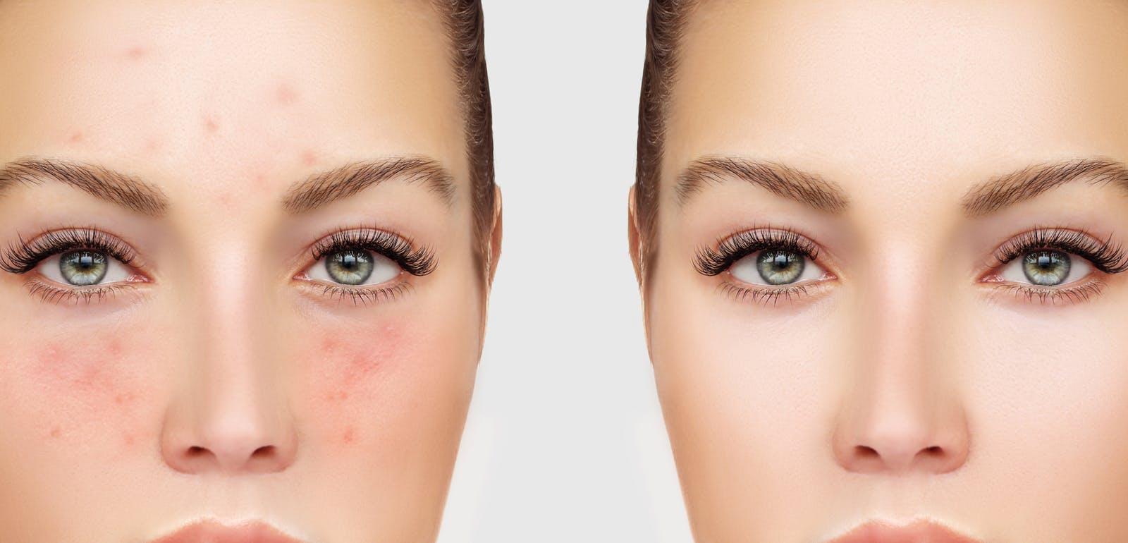 The acne positivity movement