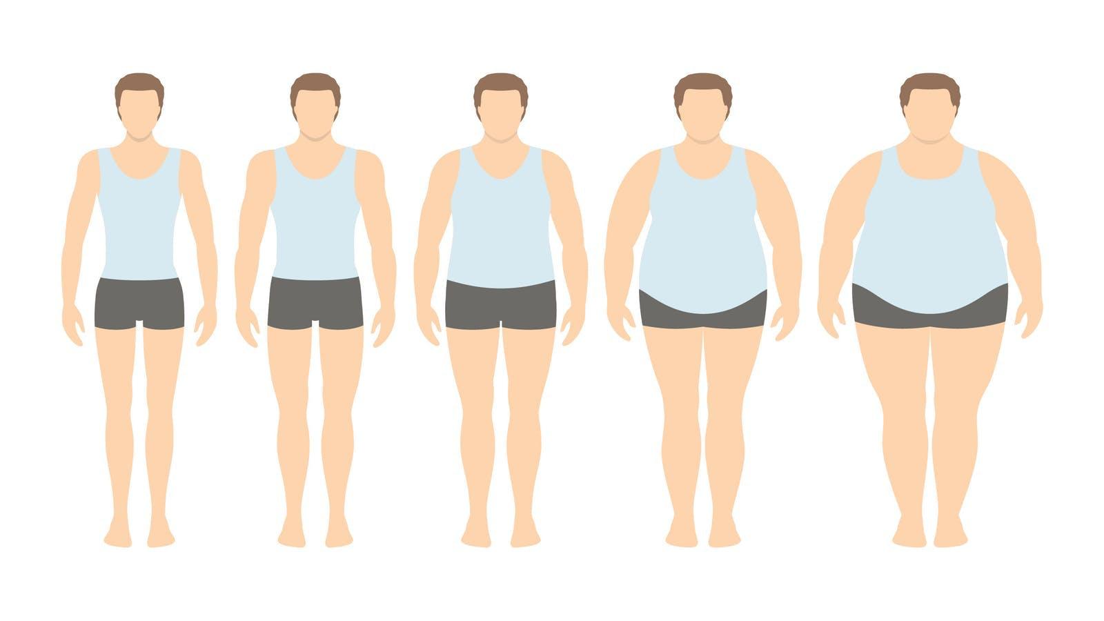 Högt BMI kopplat till kortare liv