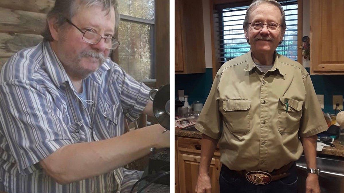 James kunde sluta med insulin efter 20 år med typ 2-diabetes