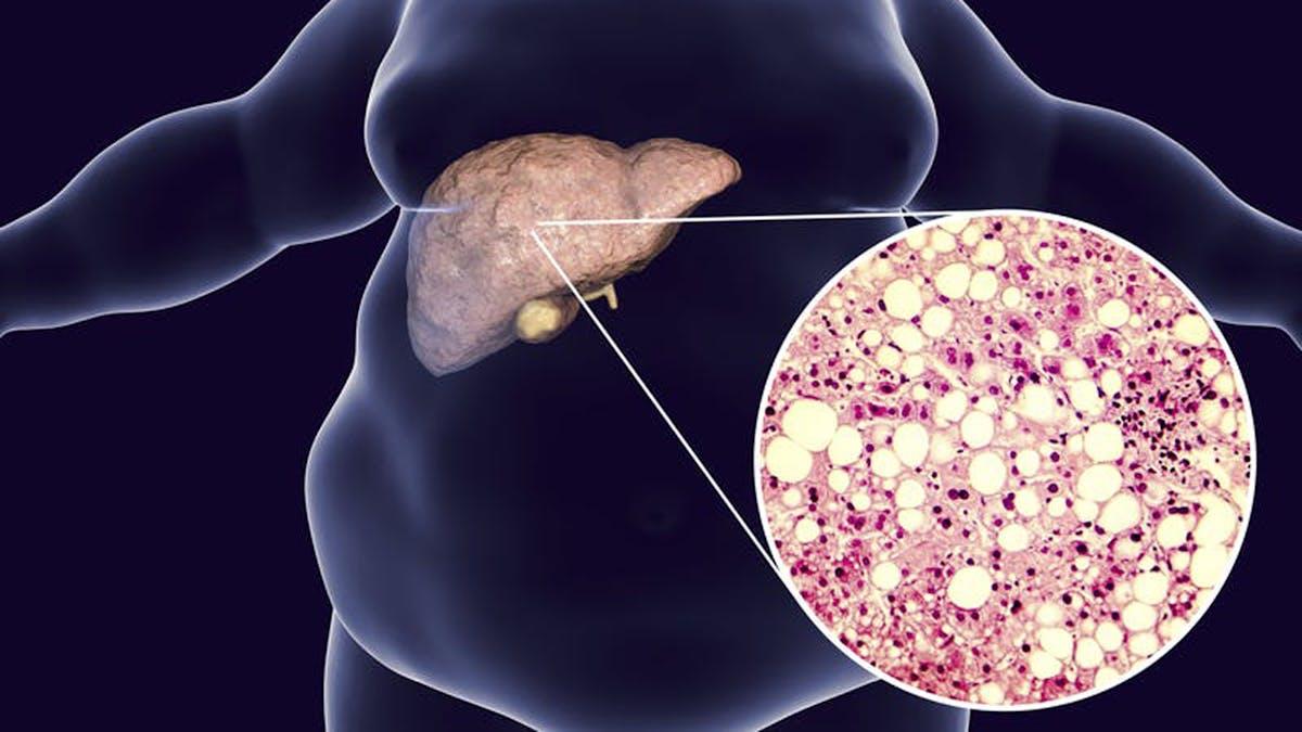 fatty-liver16x9