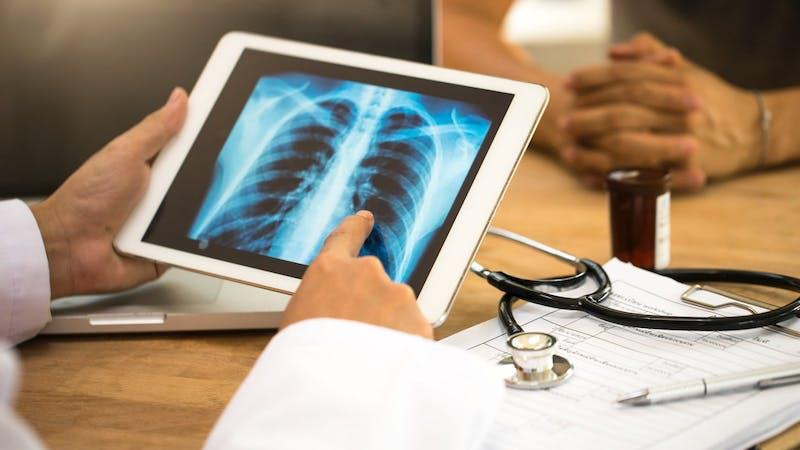Kan LCHF eller keto skada ditt skelett?