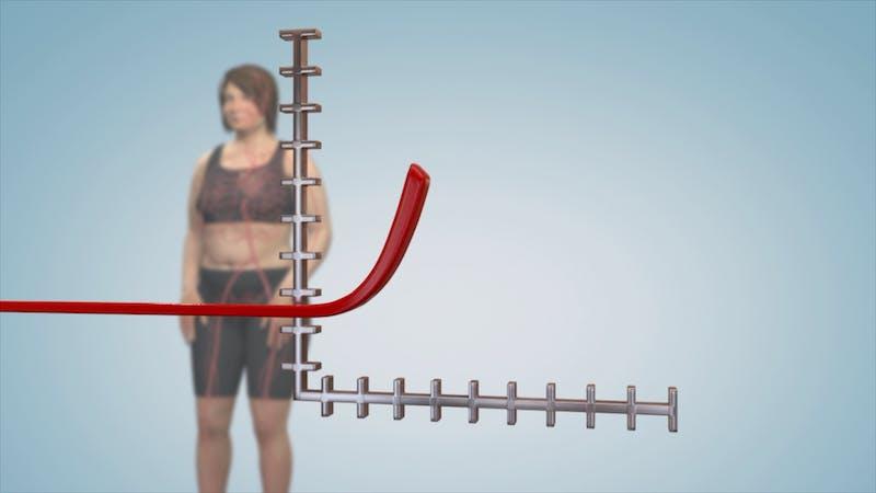 Insikter: Tänk om vi har fel om fetma?