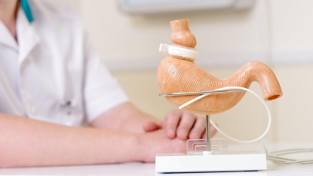 Viktminskningskirurgi för metabol hälsa och viktnedgång
