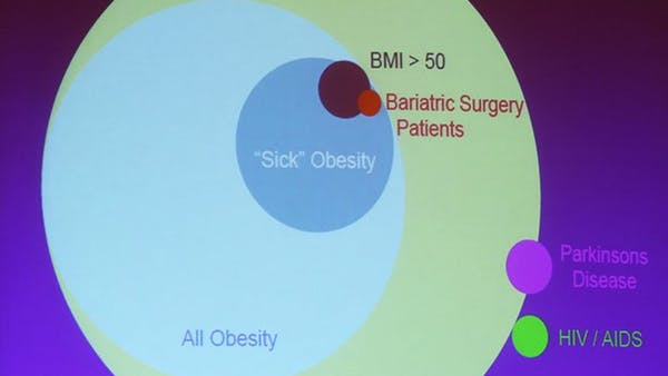 Why weight loss surgery is not the solution