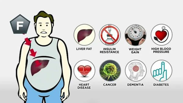 Sickeningly sweet – must see video on obesity