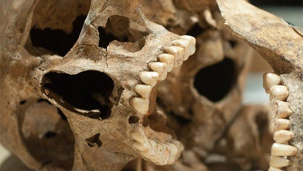 Do you want great teeth? Eat Paleo