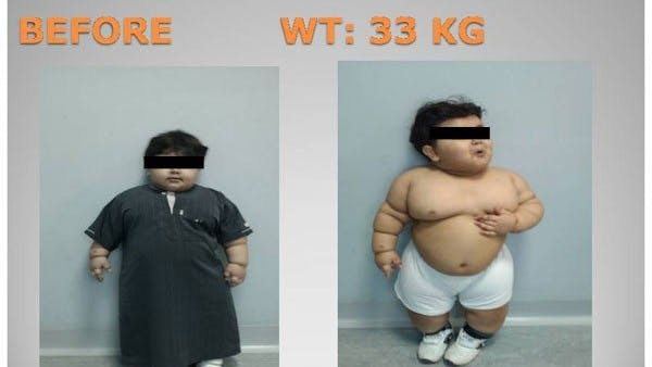 Two-year-old undergoes weight-loss surgery