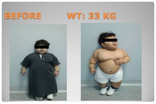 Two Year Old Undergoes Weight Loss Surgery Diet Doctor