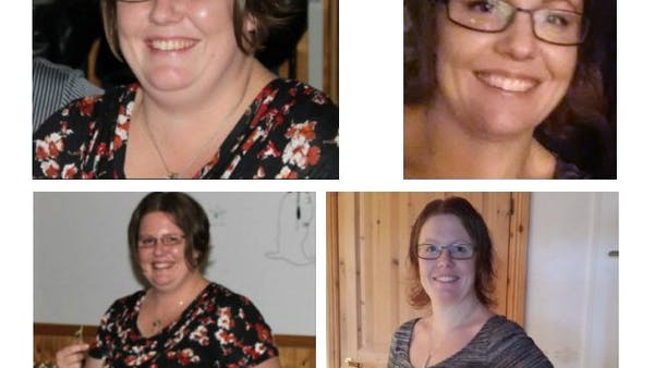 Instead of weight-loss surgery