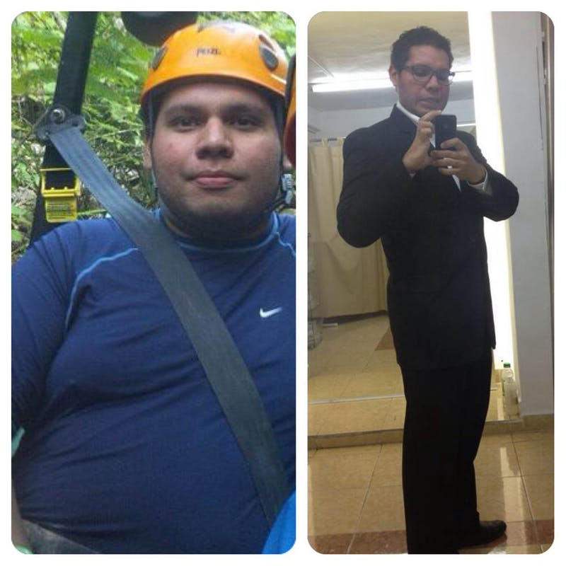 Alfonso - before and after