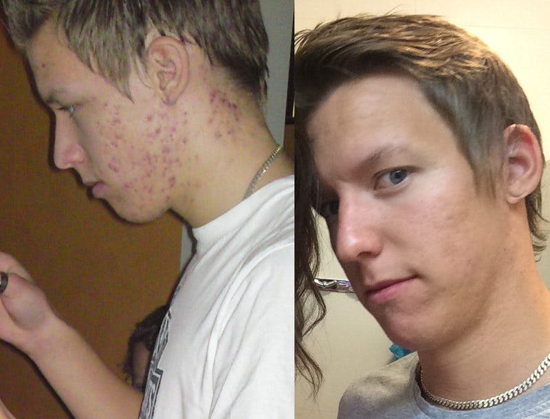 Acne (and IBS) vanished with a diet change