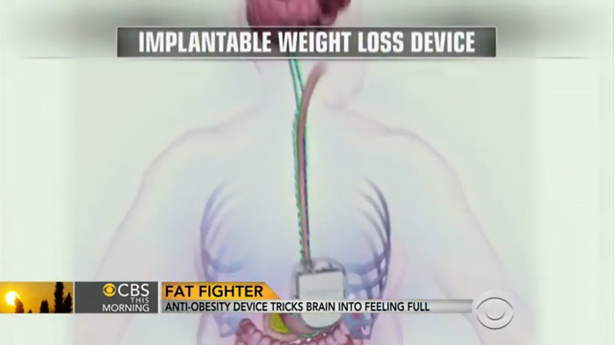 Shocking new implantable weight-loss device