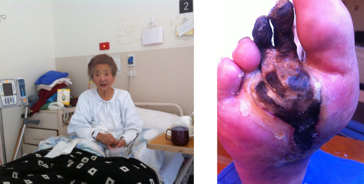 Mother in hospital with gangrene