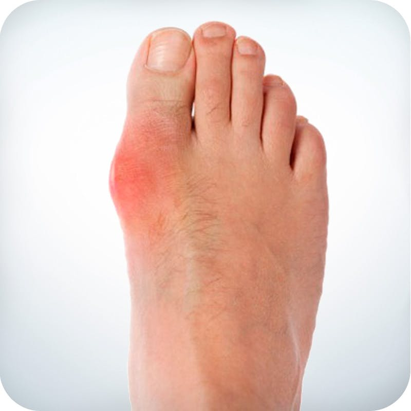 Low carb and gout