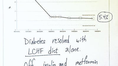 Another case of type 2 diabetes reversed