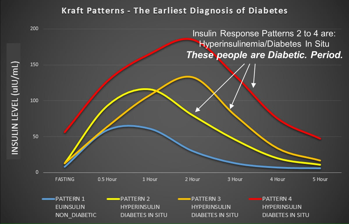 Early sign of T2DM: elevated insulin