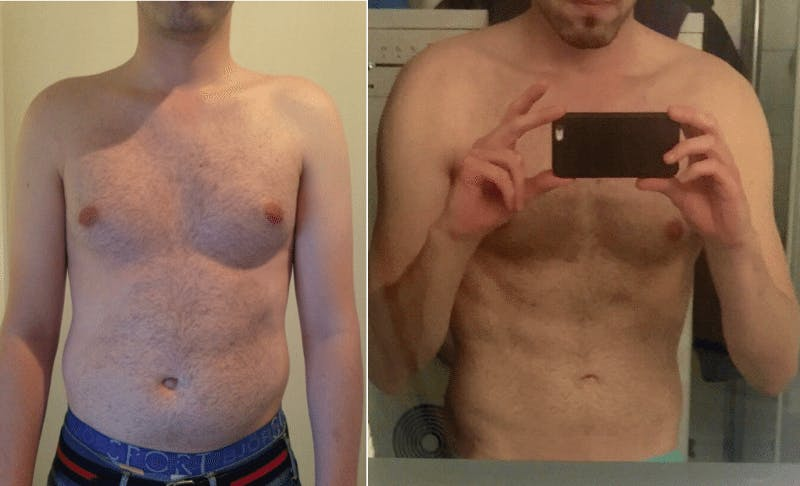 The Result of a Stricter LCHF and Intermittent Fasting