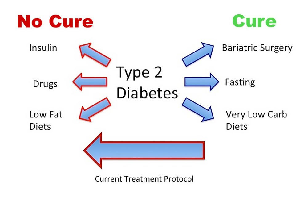 Cure or nu cure for type 2 diabetes