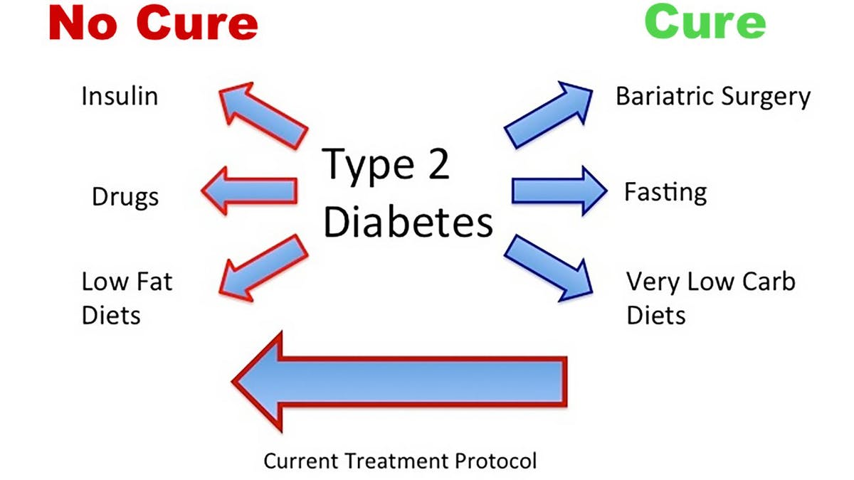 Treatments that cure type 2 diabetes