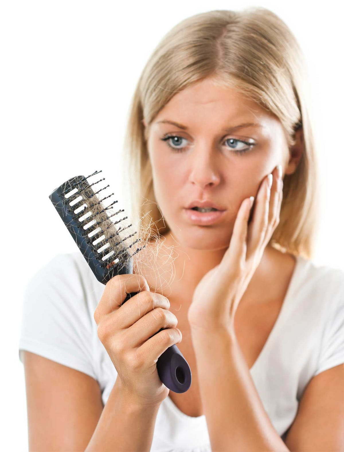 can diet cause hair loss