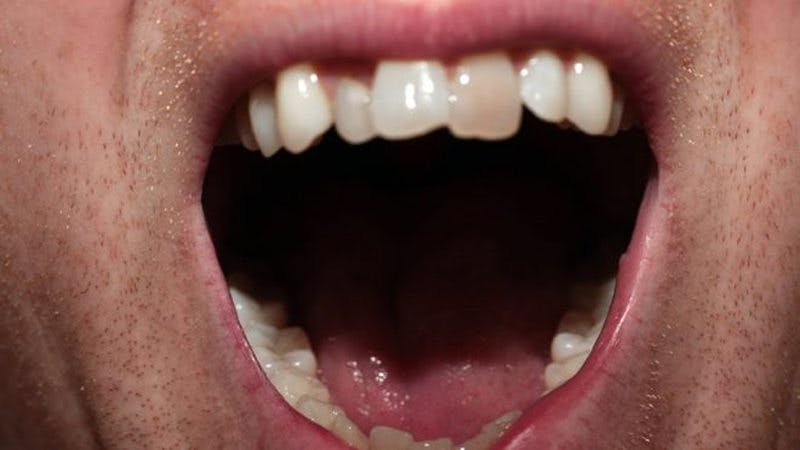 Footballers and Olympic athletes have bad teeth – here's why