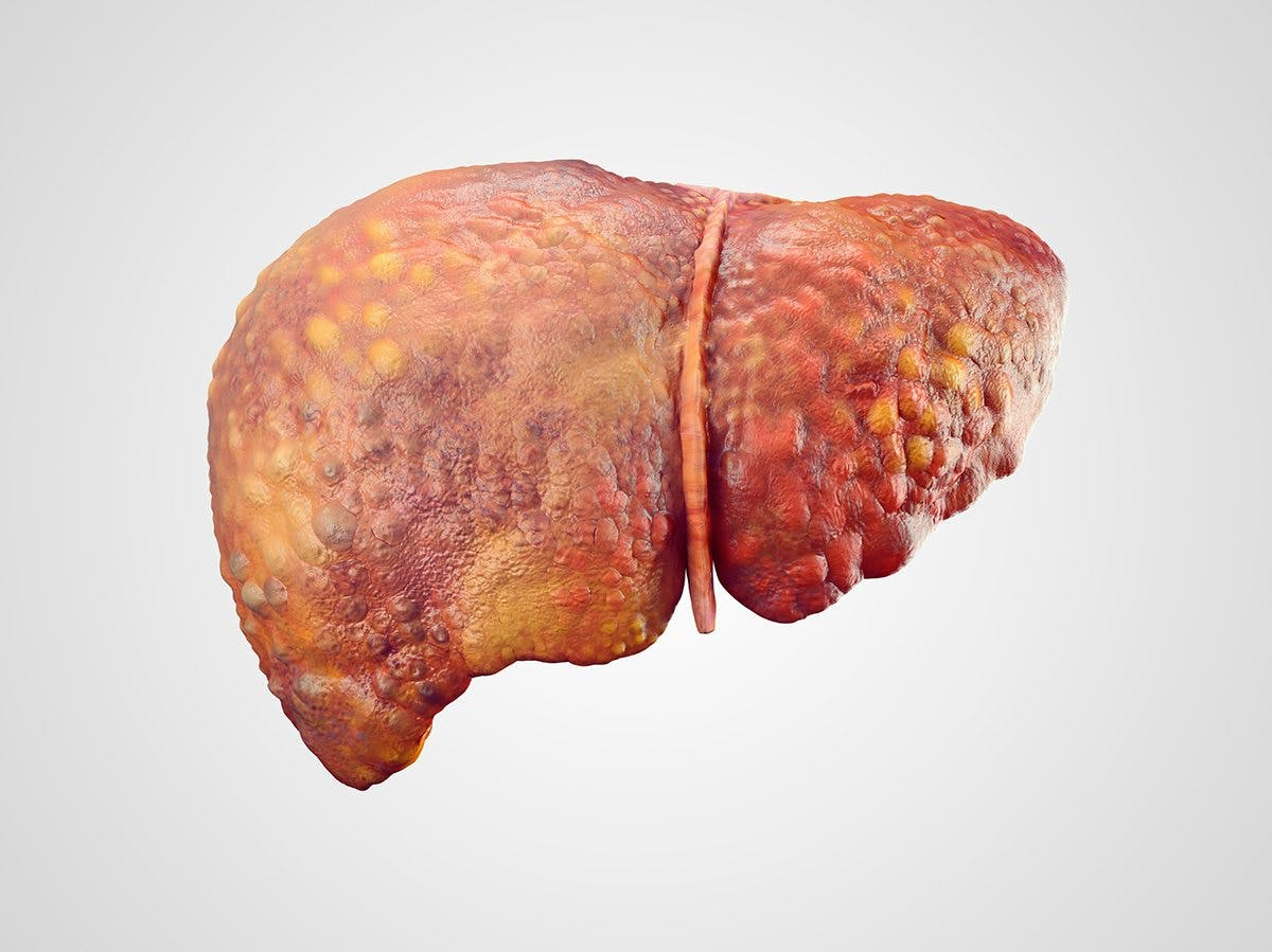 Insulin Results in Fatty Liver – New Insulin Drug Discarded