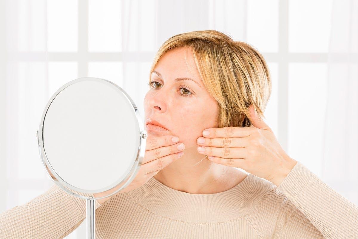 acne_woman