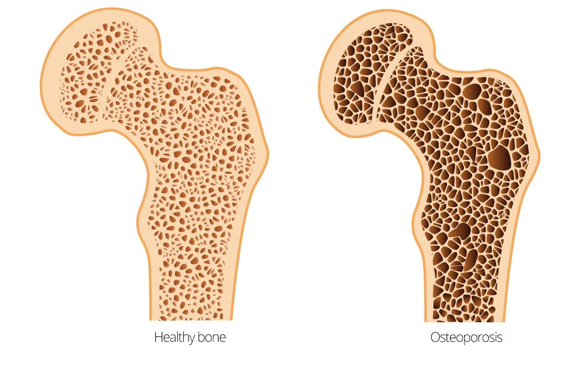 does a los carb diet increase osteoporosis