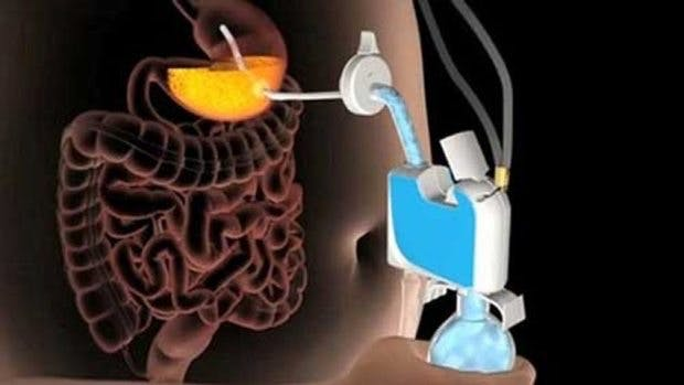 FDA Approves Bulimia Device as Treatment of Obesity