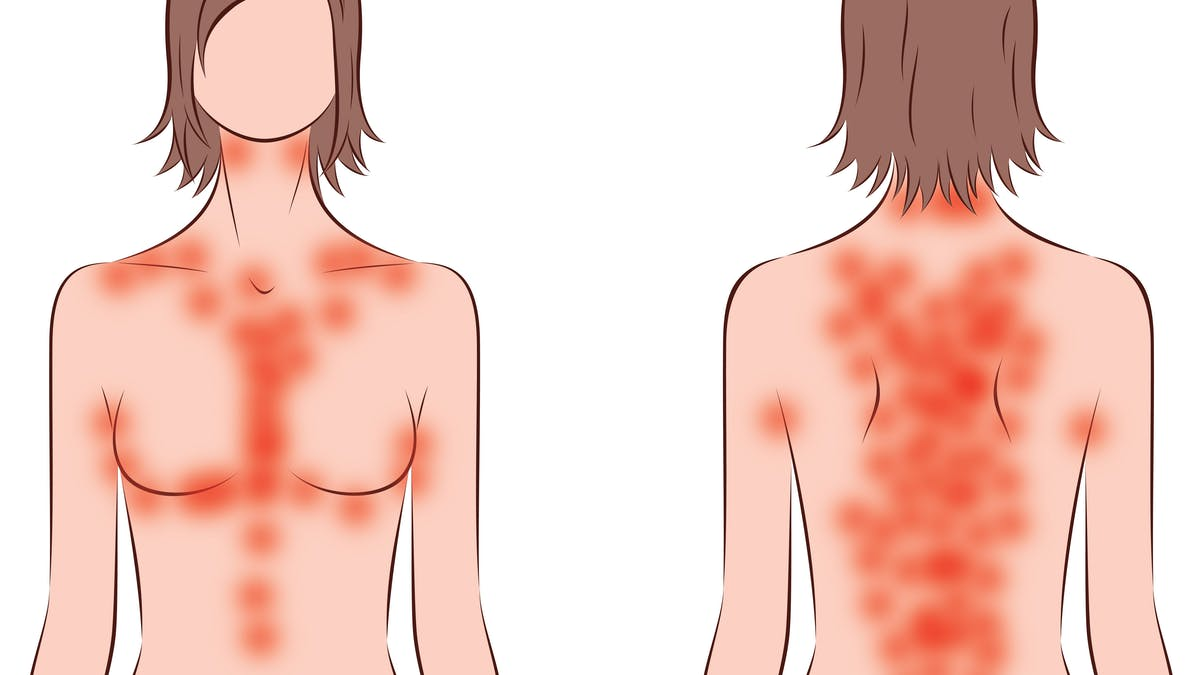 Keto rash – Why some people itch on low carb, and what to do about it