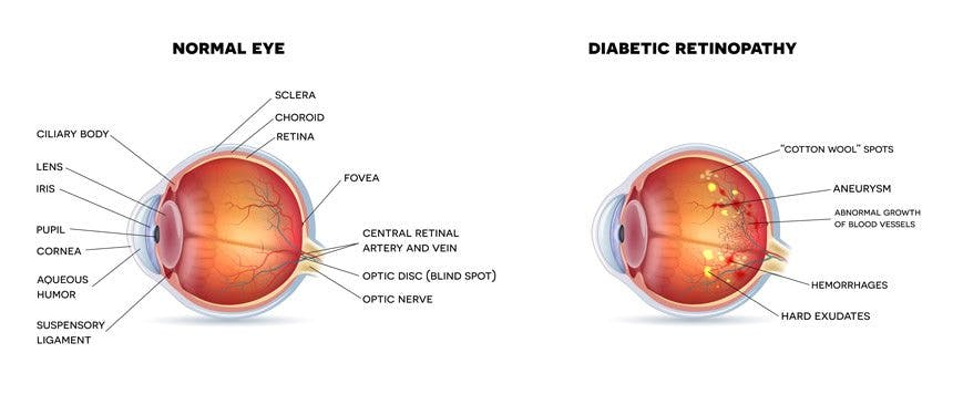 retinopathy-condition
