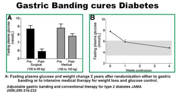 surgerycuresdiabetes5