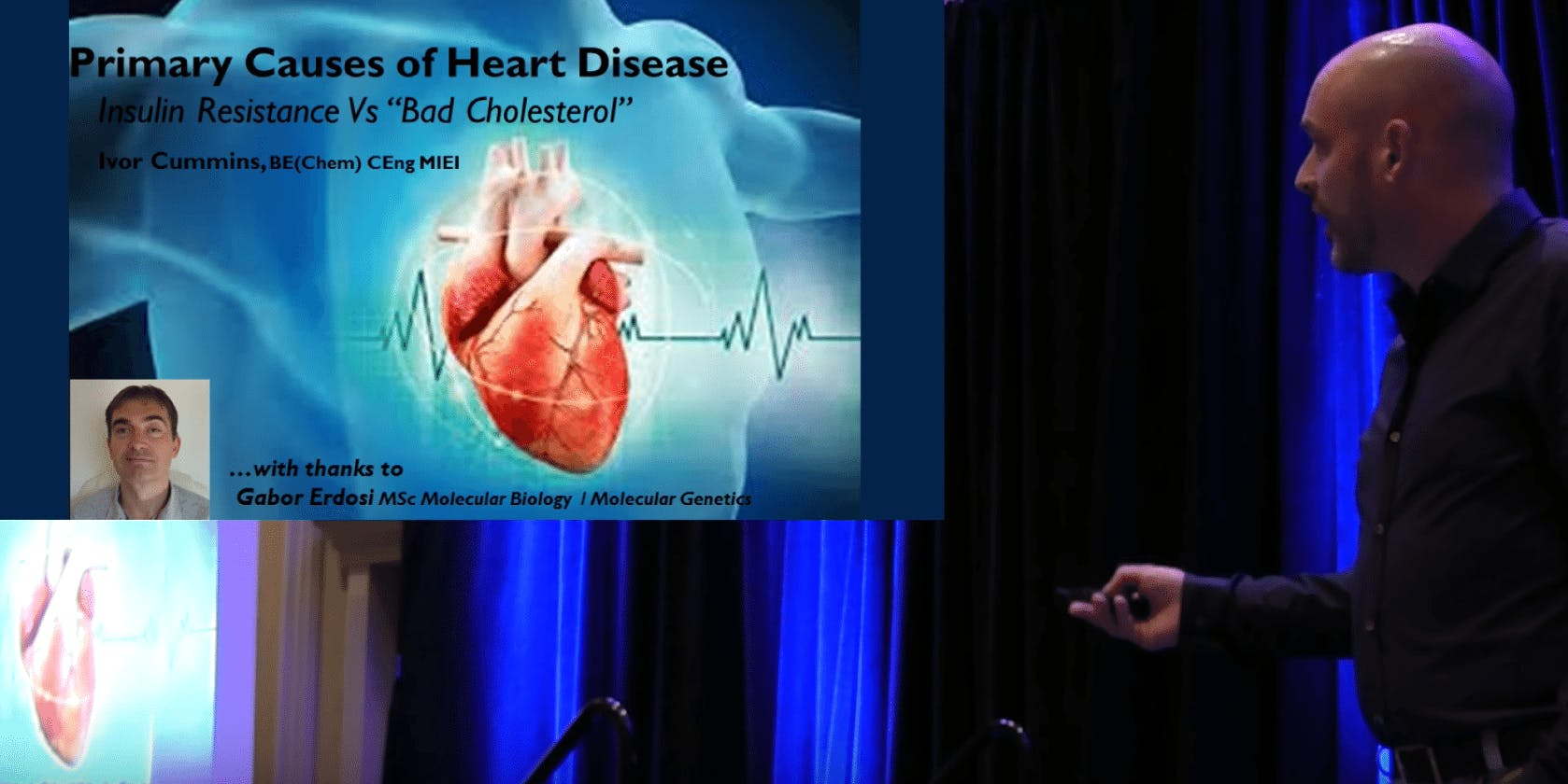 Ivor Cummins Talks Heart Disease and Insulin Resistance