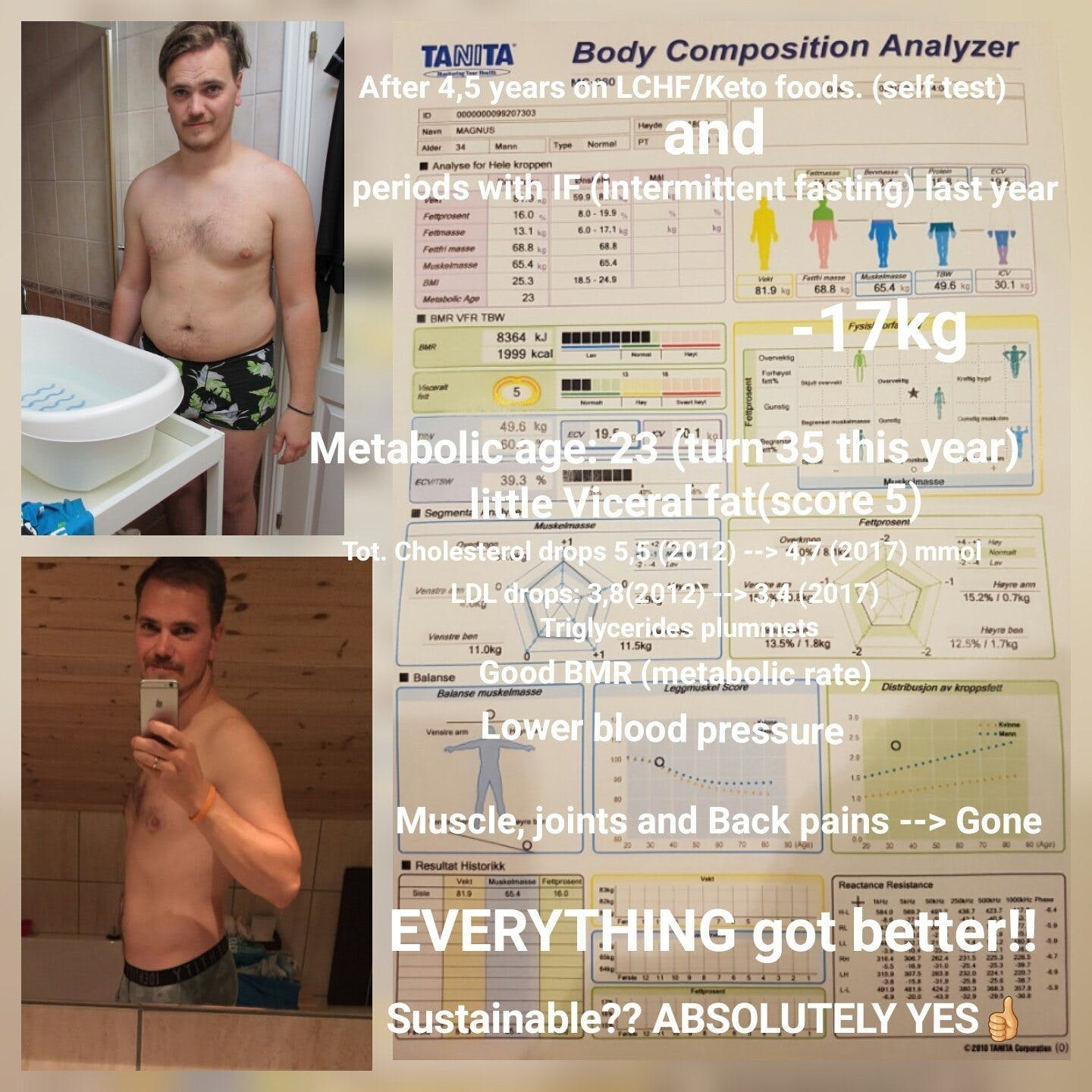 "4.5 years with keto and IF and ""everything got better"""