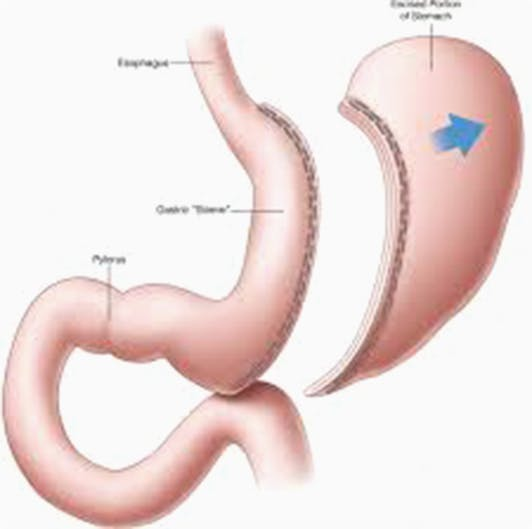 SleeveGastrectomy