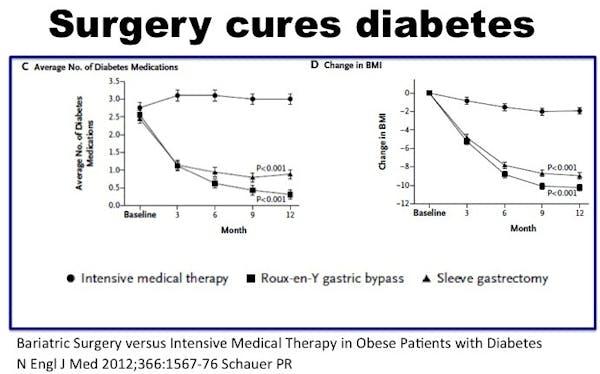 SurgeryCuresDiabetes